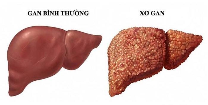 Xơ gan mất bù là một trong tứ chứng nan y, là căn bệnh gây tỷ lệ tử vong cao
