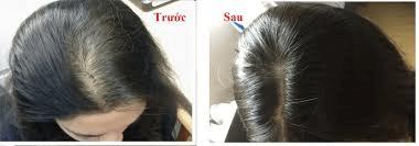 Đây là ảnh tóc mình sau hơn 2 tháng sử dụng bộ đôi sản phẩm Welhair