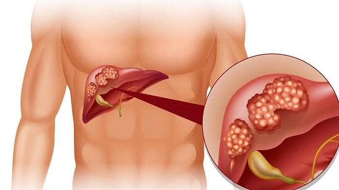 Quá trình xơ hóa gan diễn ra từ từ, âm thầm và kéo dài rất khó phát hiện.