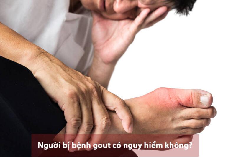 Người bị bệnh gout có nguy hiểm không? Cách ngăn ngừa tình trạng bệnh trở nên nặng hơn