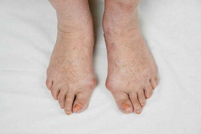 Bệnh gout gây viêm và đau ở khớp