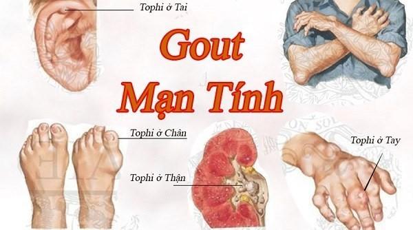 Bệnh gout mạn tính lâu dài có thể dẫn đến tình trạng sỏi thận