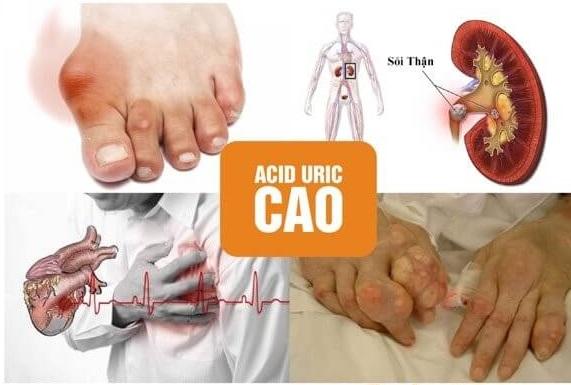 Các biến chứng của tình trạng acid uric trong máu tăng cao