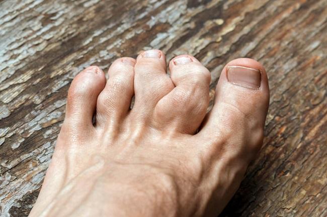 Biến chứng nguy hiểm của bệnh gout