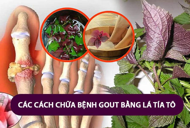 Cách chữa bệnh gout bằng lá tía tô tại nhà an toàn và hiệu quả