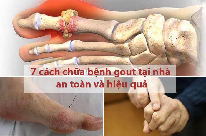 Mách bạn 7 cách chữa bệnh gout tại nhà an toàn và hiệu quả