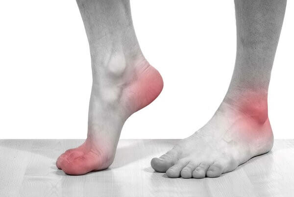 Các cơn đau gout thường xuất hiện nhiều ở các khớp chân