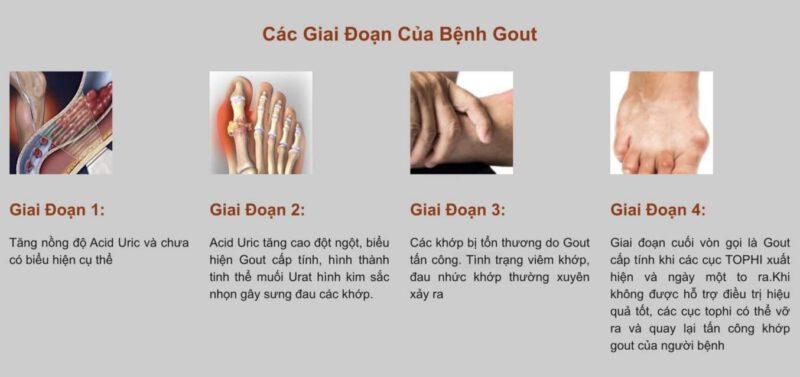 Các giai đoạn của bệnh gout