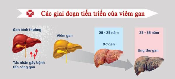 Các giai đoạn tiến triển của viêm gan