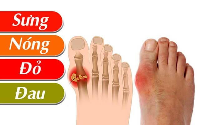 Các triệu chứng thường gặp do gout gây ra