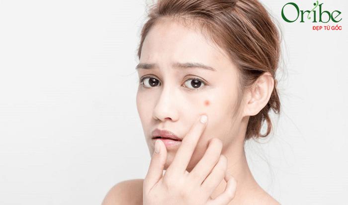 Cách lựa chọn kem dưỡng trắng da cho da mụn