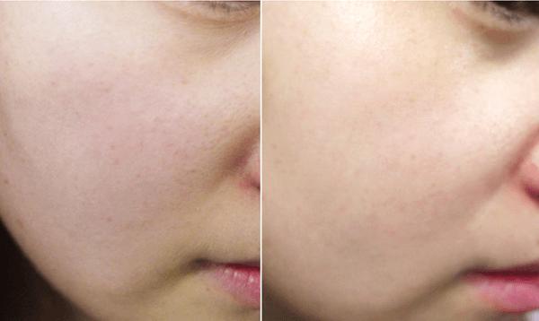 Cảm nhận khác biệt trước và sau khi mình dùng nước hoa hồng Oribe