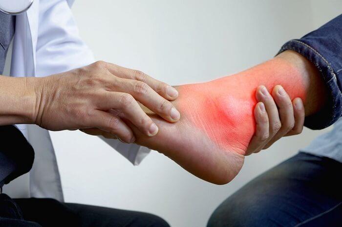 Chân bị sưng đau do tình trạng bệnh gout gây nên