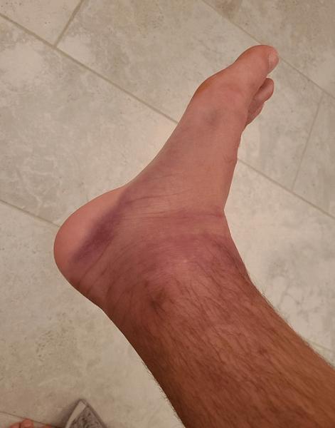 Chân mình bị nhức và sưng nhẹ