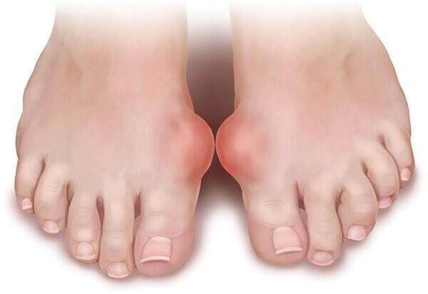 Chân bị sưng đau là biểu hiện của bệnh gout