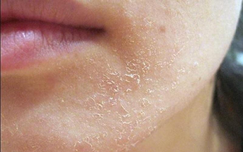 Da khô là loại da luôn thiếu nhiều độ ẩm cần thiết