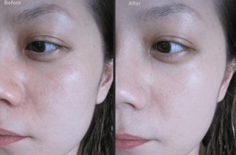 Da mặt mình sau khi sử dụng xong lọ thứ 2