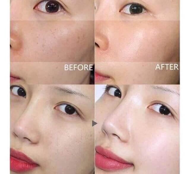 Da mình trước và sau khi sử dụng sản phẩm