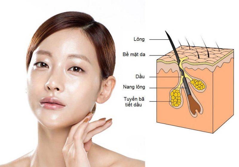 Đặc điểm da dầu nhờn mụn