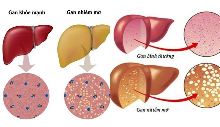 Gan khỏe mạnh và gan nhiễm mỡ