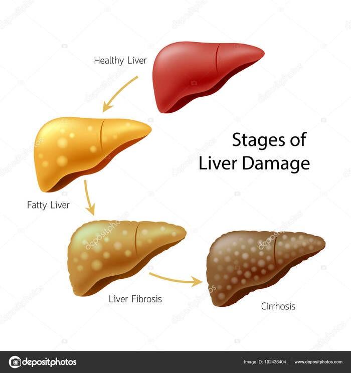 Các giai đoạn chuyển biến của bệnh gan.