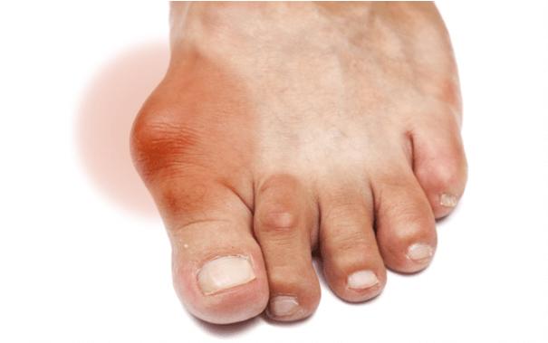 triệu chứng bị gout lâu năm