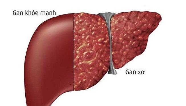 Hình ảnh phân biệt giữa gan khỏe mạnh và bị xơ gan