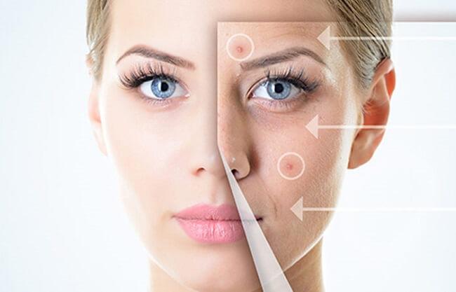 Kem trị mụn trắng da an toàn và hiệu quả được nhiều người tin dùng