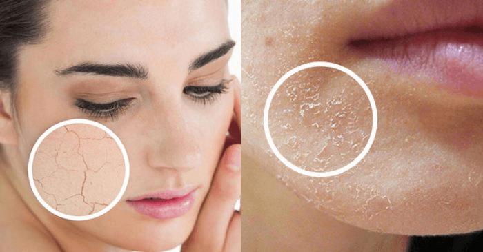 Không dùng kem dưỡng ẩm sẽ dễ khiến da bị khô – bong tróc