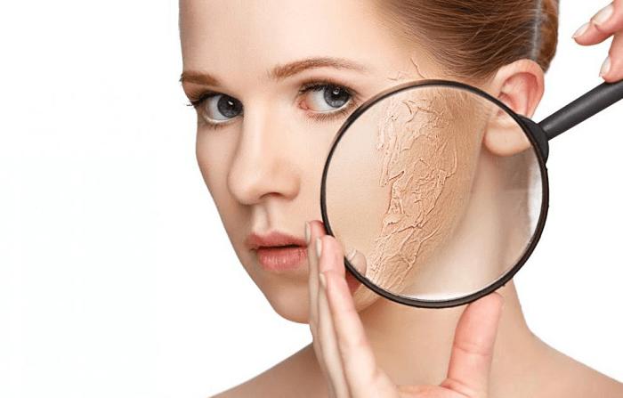 Lợi ích khi dùng kem dưỡng ẩm cho da khô