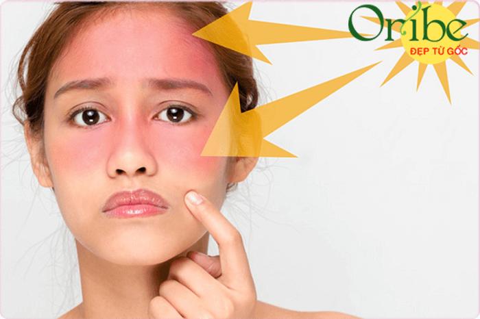 Lựa chọn kem chống nắng không phù hợp dễ gây dị ứng cho da