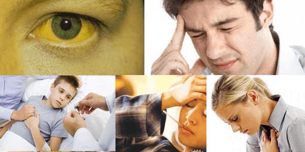 Một số triệu chứng của người bị viêm gan B cấp tính