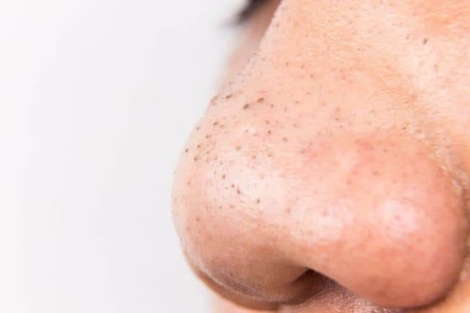 Mụn đầu đen là loại mụn phổ biến thường xuất hiện nhiều ở mũi