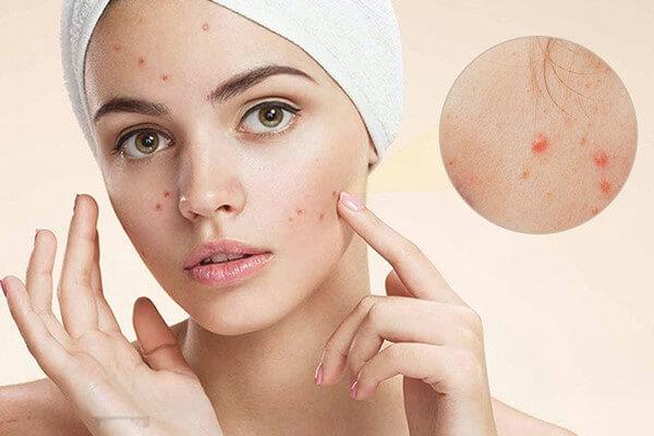 Ngăn ngừa mụn quay trở lại giúp bạn có làn da mềm mịn