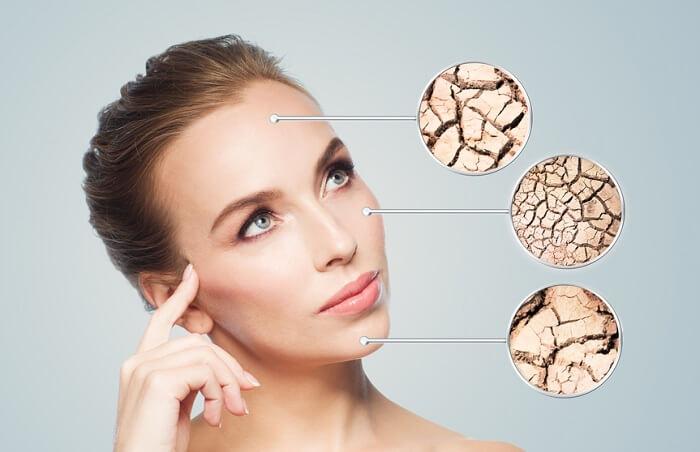 Nên lựa chọn kem chống nắng cho da khô phù hợp để giúp chống nắng hiệu quả