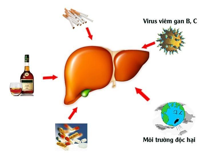 Các nguyên nhân phổ biến làm tăng nguy cơ mắc bệnh xơ gan. Ngoài ra cũng có một số nguyên nhân khác như bệnh béo phì, tiểu đường, do ứ mật...