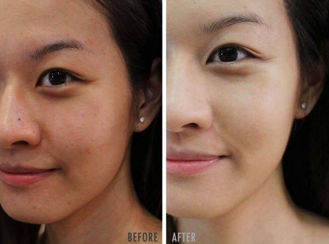 Những cải thiện rõ rệt trên da mình sau hơn 1 tháng sử dụng