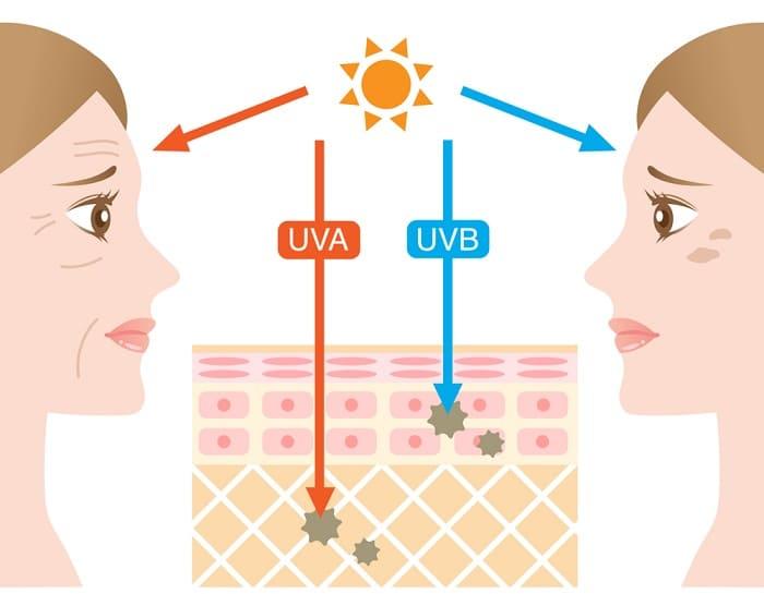 Những tác hại của tia UV đối với làn da