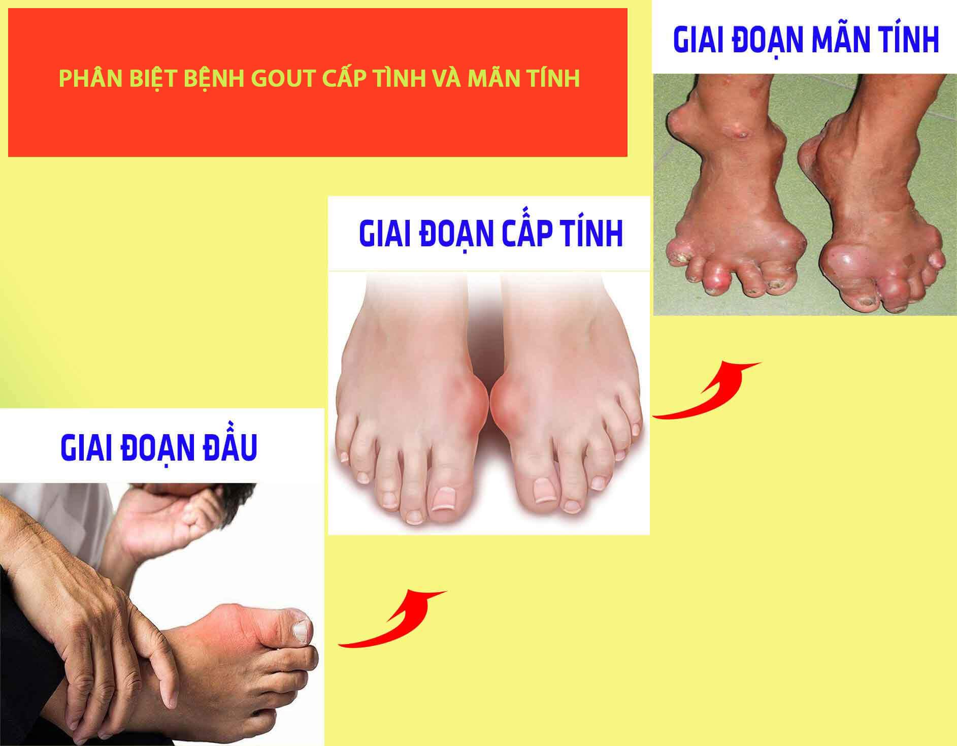 Phân biệt cơn gout cấp và bệnh gout mạn tính