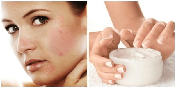 Sử dụng sản phẩm không phù hợp cũng gây kích ứng da và nổi mụn
