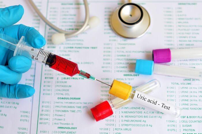 Test Acid Uric