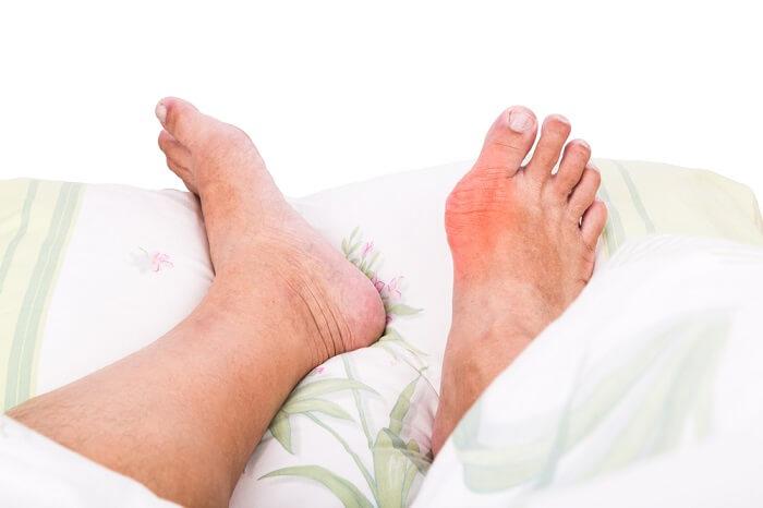 Tình trạng sưng đau khi acid uric tăng cao