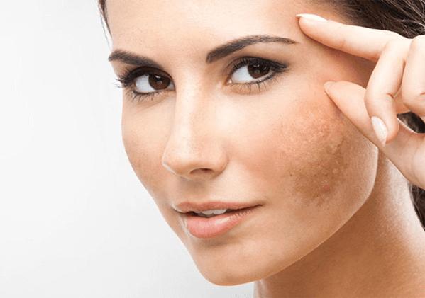 Tình trạng nám da thường xuất hiện nhiều ở các chị em phụ nữ sau sinh