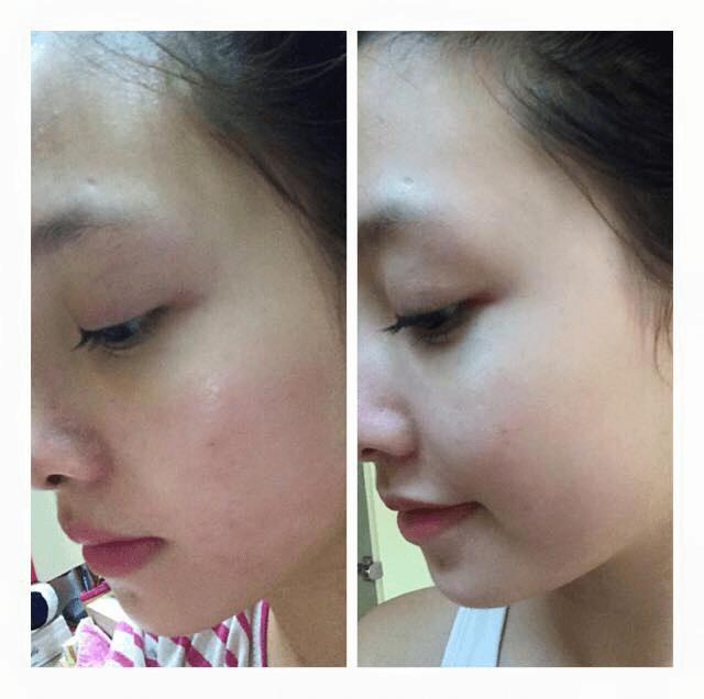 Trước và sau khi mình sử dụng sữa rửa mặt Oribe hơn 2 tuần