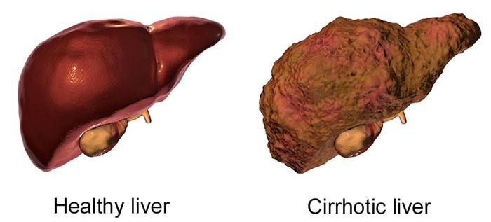 Hình ảnh minh họa gan bình thường và gan đã bị xơ hóa.
