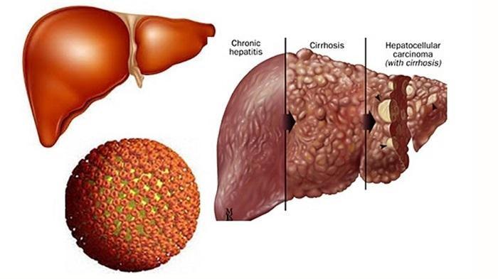 Xơ gan là bệnh gan mãn tính. Các biến chứng của bệnh xơ gan rất nguy hiểm, cần được phát hiện sớm để kịp thời chữa trị.